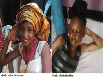 lady-gets-bathed-with-acid-in-abuja-by-mans-wife-photo