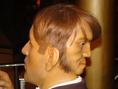 meet-the-man-born-with-two-face-edward-mordake-photo